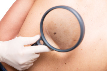 Hautcsreening mit einer Lupe