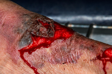 macro shot of a skin scratch with red blood
