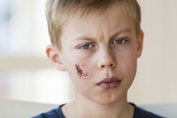 Young boy with face injury