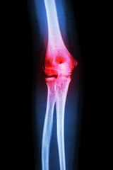 X-ray human's elbow and arthritis (Gout , Rheumatoid)