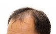 Male head with hair loss symptoms front side - 69824629
