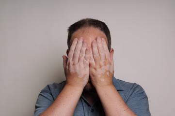 man with Vitiligo hiding face