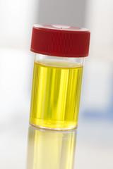échantillon d'urine fraîche
