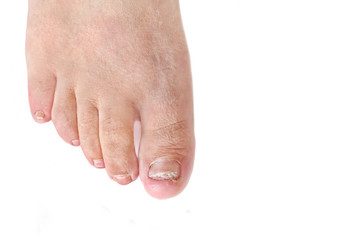Toenail fungus infection - dermatophytic onychomycosis