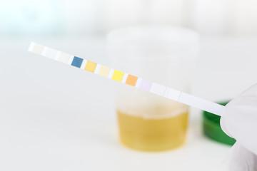 Urinbecher für eine Urinuntersuchung mit Urin Stix