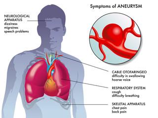 sintomi aneurisma