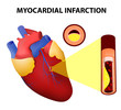 Myocardial infarction - 70007485