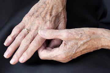 Schmerzende alte Hände
