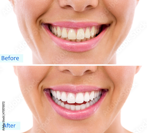 whitening - bleaching treatment ,woman teeth and smile, before a - 70170072