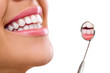 Healthy woman teeth - 70170277