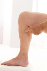 Varices sur jambes d'homme
