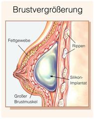 Silikon-Implantat.Brustvergrößerung