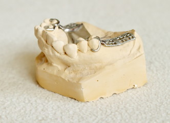Metal framework for partial denture