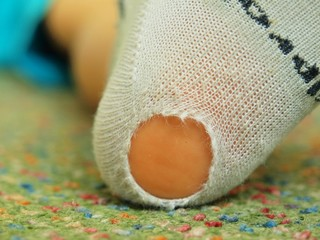 Worn out sock. Worn children socks with a hole and pink skin
