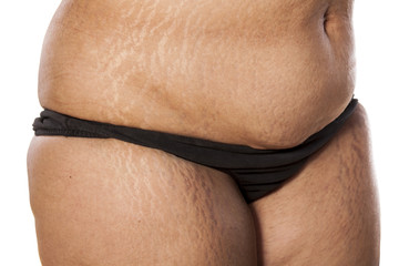 female stomach and legs covered in stretch marks
