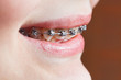 dental braces on teeth of upper jaw close up