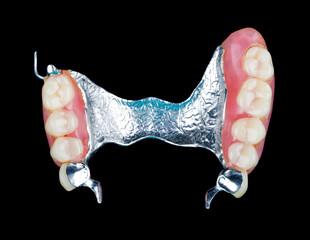 Removable dental prosthesis