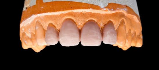 Upper denture gypsum model