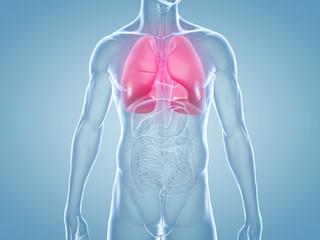 Lungenentzündung: anatomische 3D-Illustration