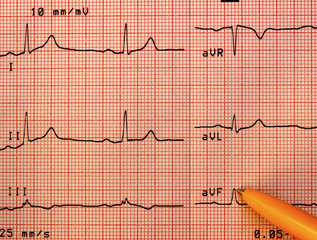 Healthy heart electrocardiogram