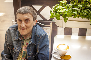 Man with cerebral palsy, smiling an outdoor cafe.