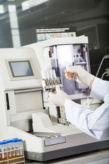 Researcher Examining Samples By Urine Analyzer