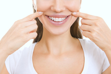 Beautiful smiling girl with retainer for teeth pointing at her s