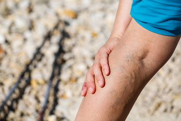 Painful varicose veins