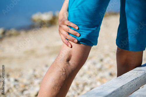 Leinwanddruck Bild Painful varicose veins