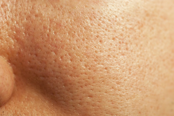 Closeup of human facial pores