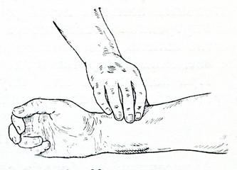 Pulse evaluation at the radial artery.