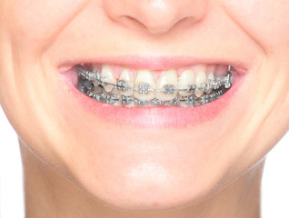 Close up smile of an young woman wearing orthodontic braces.