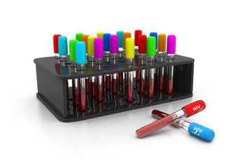 HIV Blood test , Blood In tube for laboratory analysis