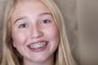 Leinwanddruck Bild - teen girl with braces on her teeth