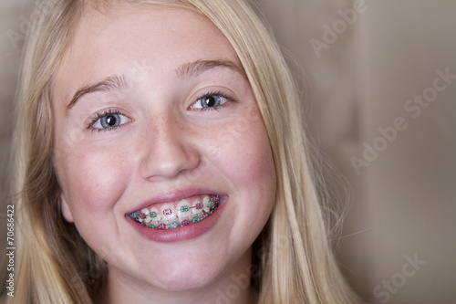 teen girl with braces on her teeth - 70686422
