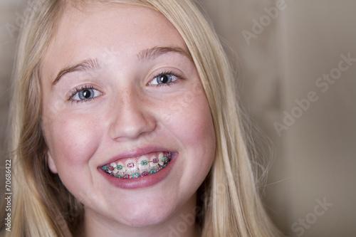 Leinwanddruck Bild teen girl with braces on her teeth