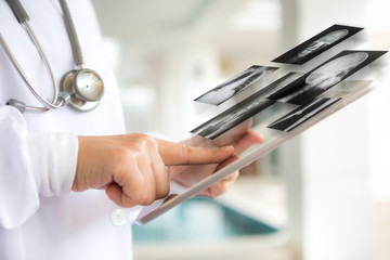 Doctor using tablet computer with screen of x-ray out
