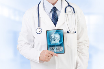 Doctor with MRI scan on tablet screen