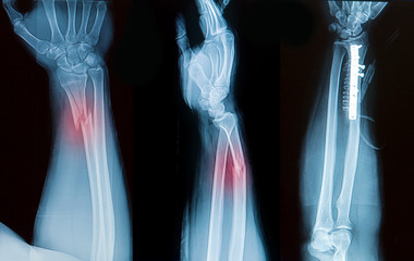 x-ray image of borken forearm bone show pre- post operation
