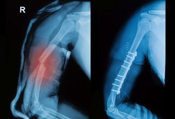 x-ray image of borken arm bone show pre- post operation
