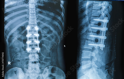 Leinwanddruck Bild x-ray image of back pain show spinal column with implant fusion