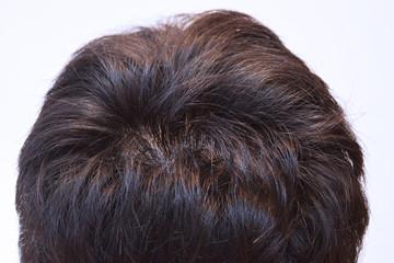 30代男性の髪の接写