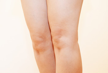 40代の女性の膝