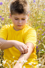 Boy with an allergy to  hands