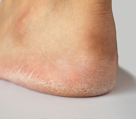 close up of heel cracked of foot
