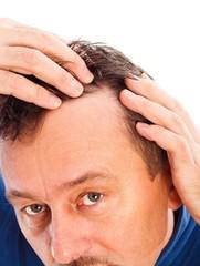 Androgenic Hair Loss