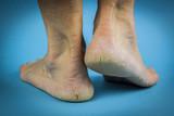Cracked heels on blue background - 70941883