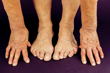Rrheumatoid arthritis hand and toe deformities