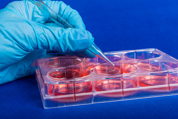 Human stem cells in biomedical scientific laboratory.