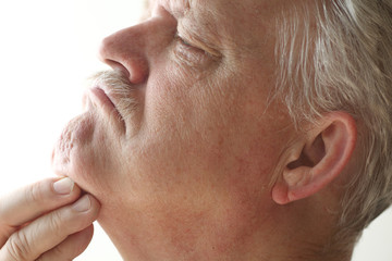 Man with itchy chin